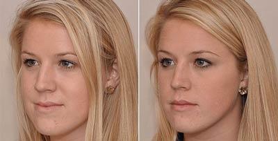 درمان آندربایت (جلو بودن فک پایین) با ارتودنسی و گسترش فک بالا