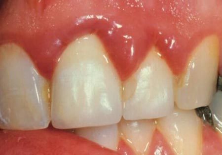 مشکلات دهان و دندان در بارداری و درمان های دندانپزشکی در حاملگی