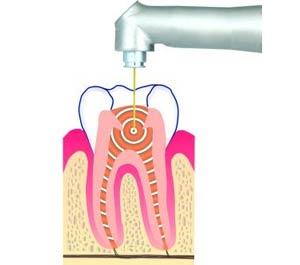 نقش لیزر در عصب کشی بدون درد و خونریزی دندان و برداشتن عفونت باکتریایی
