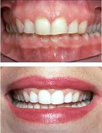 بهترین دندانپزشک زیبایی تهران:لبخند درخشان با متخصص زیبایی دندان