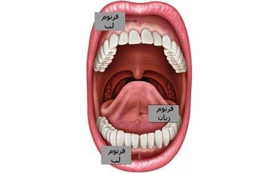 فرنکتومی با لیزر (جراحی برداشت بند زیر زبان و لب) بدون خونریزی
