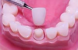 مزیت های پرسلین ونیر نسبت به سایر روش های زیبایی دندان