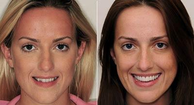 درمان کراس بایت و پیشگیری از انحراف قوس دندانی و اختلال جویدن