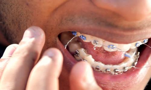 مراقبت های اورژانسی در ارتودنسی:شکستن و شل شدن براکت و سیم