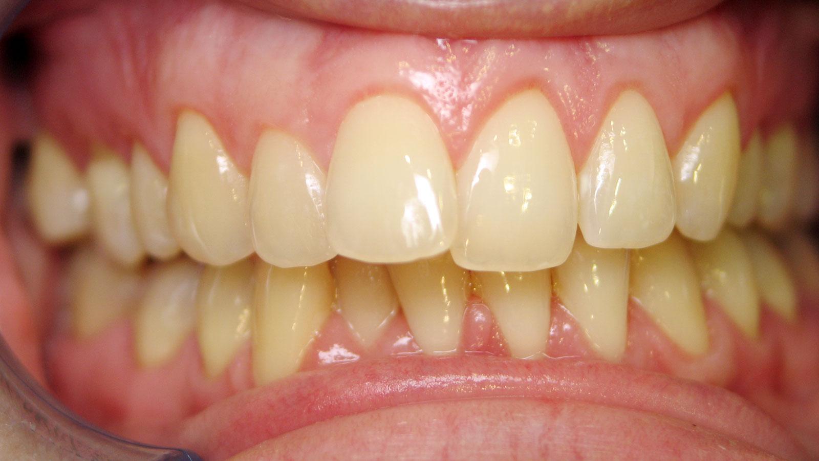 ترمیم دندان های جلو آمده