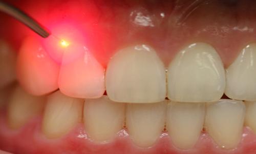 لیزر درمانی لثه (درمان بیماری لثه با لیزر):روش بدون درد و خونریزی