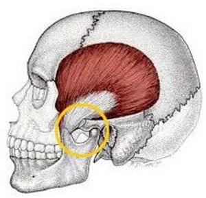 صدا دادن استخوان فک (مفصل تمپروماندیبولار):درمان سنتی و دارویی