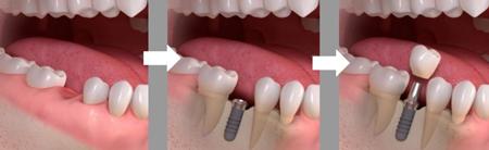 ایمپلنت فوری دندان بدون درد در یک جلسه، برای بازسازی ریشه و تاج دندان