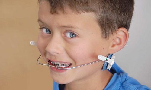 وسایل و تجهیزات ارتودنسی برای خلق لبخندی زیبا