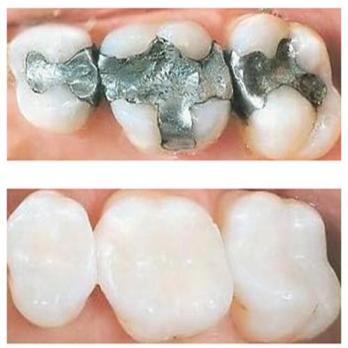 مزایا و مضرات آمالگام دندانپزشکی برای پرکردن و ترمیم دندان های خراب