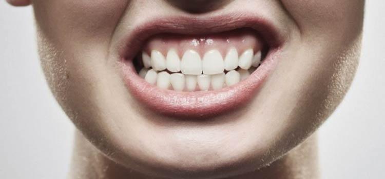 درمان دندان قروچه (براکسیسم) و ساییدن دندان با کاهش استرس و گارد