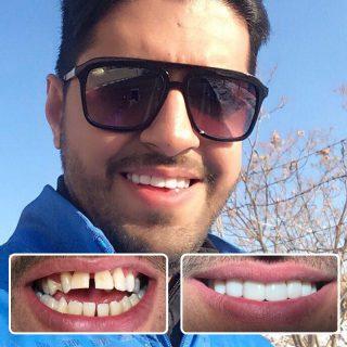 بستن فاصله بین دندان (دیاستم) و جفت شدن دندان های فاصله دار با 6 روش