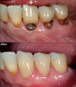 پر کردن همرنگ دندان با کامپوزیت
