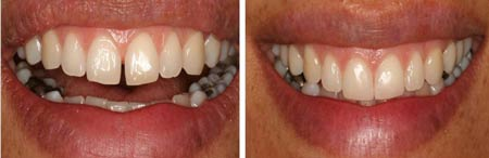 بستن فاصله بین دندان