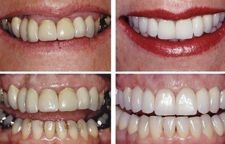 علل فاصله بین دندانها