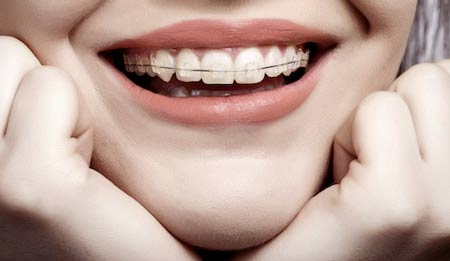 درمان ارتودنسی برای بستن فاصله بین دندان