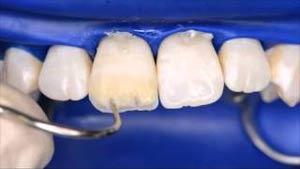 بستن فاصله بین دندان با استفاده از کامپوزیت باندینگ