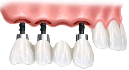 بریج و ایمپلنت دندان