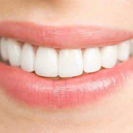 8 راه کار برای ماندگار کردن ونیر یا لمینت دندان