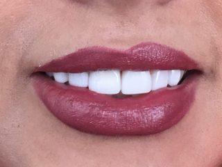 دکتر دندانپزشک زیبایی خوب