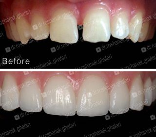 لمینیت کردن دندان