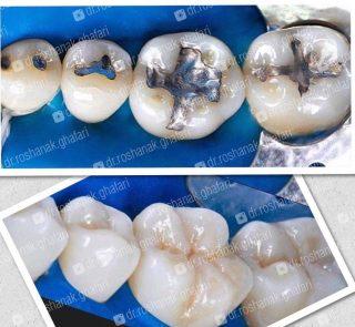 ترمیم زیبایی دندان های خلفی