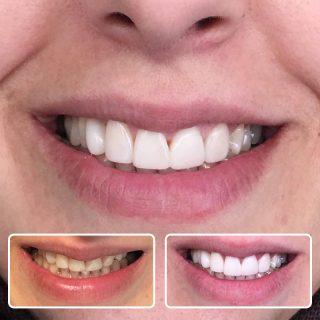 سفید دندان های قدامی