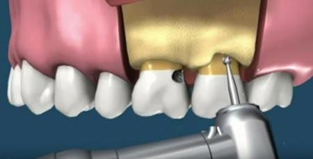 افزایش طول تاج دندان:بهبود لبخند و ترمیم لثه ناصاف باجراحی و لیزر