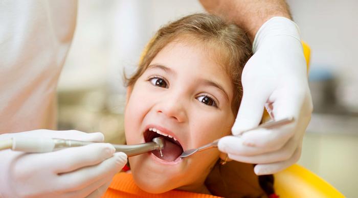 عصب کشی دندان شیری کودکان برای درمان ریشه و پالپ زنده و غیر زنده
