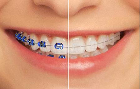 از ارتودنسی با براکت سرامیکی (شفاف و همرنگ دندان) چه می دانید؟