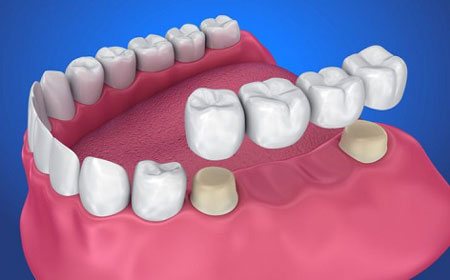 تقویت و ترمیم مینای دندان با تغذیه و درمان های دندان پزشکی