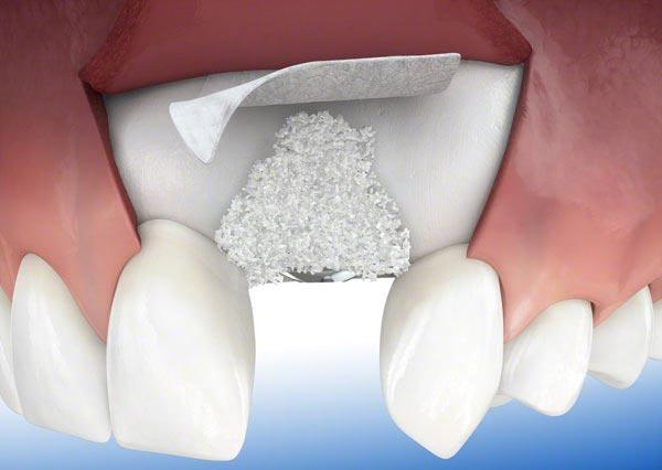 پیوند استخوان فک قبل ایمپلنت:افزایش تراکم استخوان برای کاشت دندان