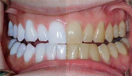 دلیل زرد شدن دندانها