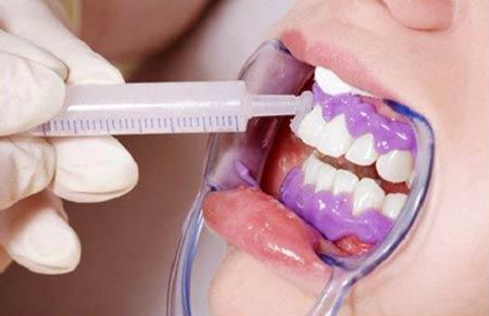 بلیچینگ دندان در مطب
