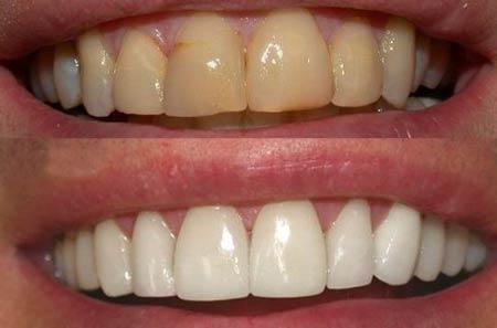 متقاضی مناسب سفید کردن دندان ها