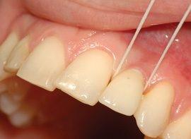 درمان بی دندانی کامل با کاشت ایمپلنت تمام فک بر پایه 4 ایمپلنت (all on 4)