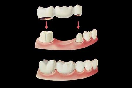 بریج دندان:پر کردن فضای خالی بین دو یا چند دندان با پل دندانی