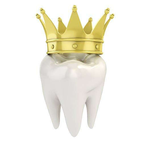 انواع روکش دندان (پرسلنی،سرامیکی) پوششی برای دندانهای آسیب دیده