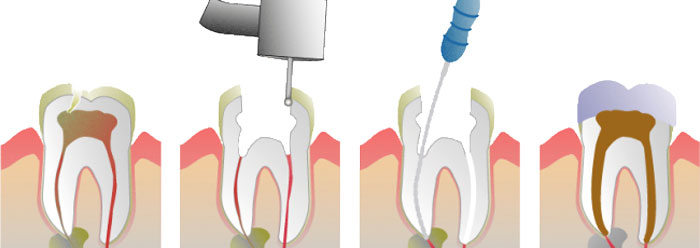 درد بعد از عصب کشی به علت عفونت دندان