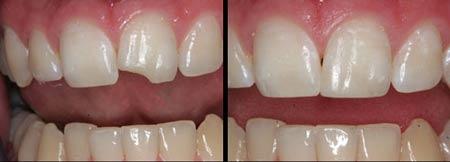 باندینگ در دندانپزشکی زیبایی