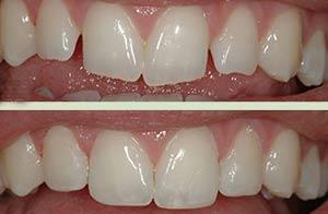 اصلاح فرم دندان