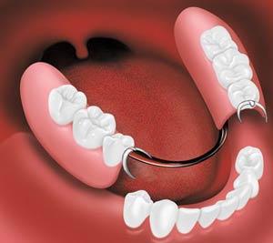 دندان مصنوعی (کامل و تکه ای):پروتز ثابت و متحرک در افراد بی دندان