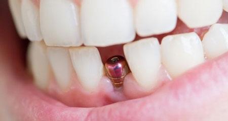 آیا فواید ایمپلنت دندان در زیبایی لبخند بیشتر است یا معایب آن؟
