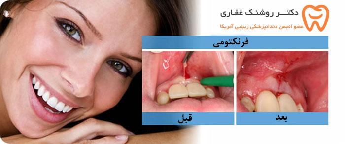 فرایند جراحی فرنوم (فرنکتومی) لثه و زبان و آزاد کردن بند زبان و لب