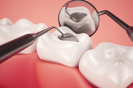 پر کردن دندان کودکان و لزوم ترمیم دندان شیری اطفال