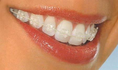 ارتودنسی ثابت برای درمان ناهنجاری و بی نظمی شدید دندان