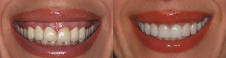 درمان لبخند لثه ای (لبخند لثهنما): دیده شدن لثه هنگام خندیدن