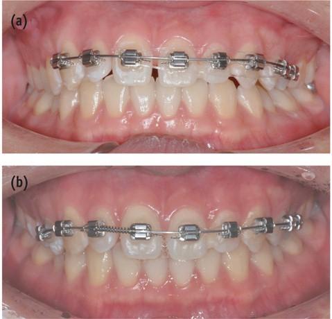 بستن فاصله یا گپ بین دندان (دیاستم) با ارتودنسی