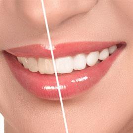 5 نکته که باید قبل از ونیر (لمینت ) دندان بدانید