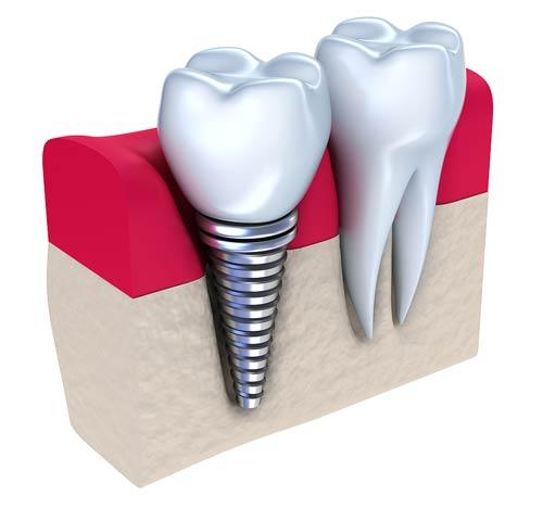 سوالات رایج ایمپلنت دندان و پاسخ به پرسش های متداول کاشت دندان